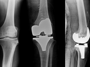 Knee Replacement Surgeons in Bangalore