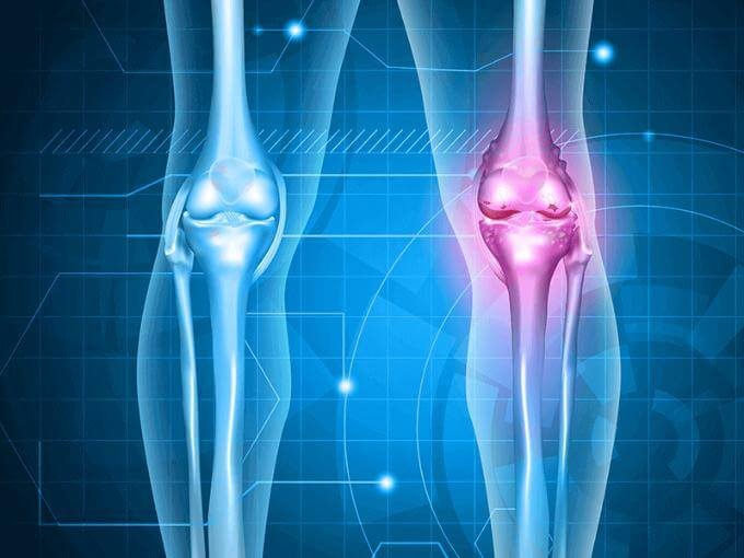 best knee surgeon in Bangalore