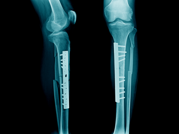 Knee Arthroscopy Surgery